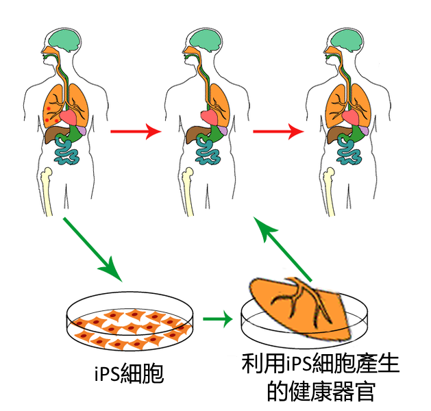 IPS細胞のイメージ
