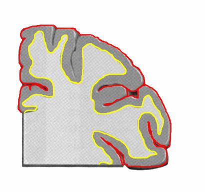 大脳皮質-min